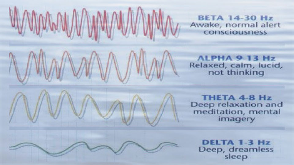 A trace graph of brain waves